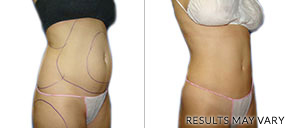 Liposuction Before And After Houston TX