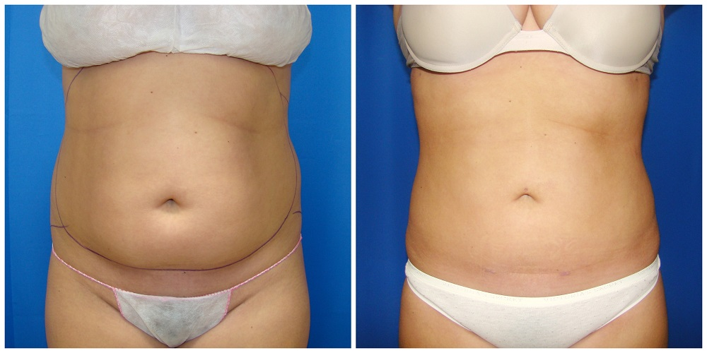 Female Liposuction Before & After Patient #192