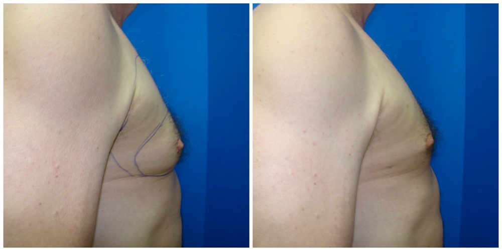 Male Liposuction Before & After Patient #280