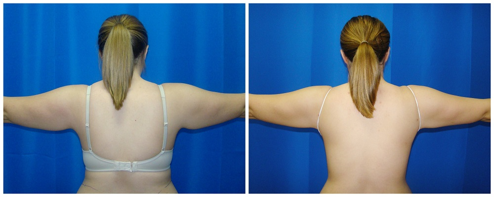 Female Liposuction Before & After Patient #206