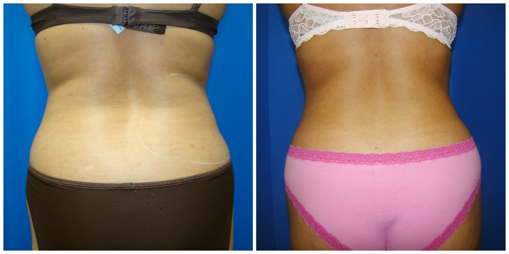 Female Liposuction Before & After Patient #212