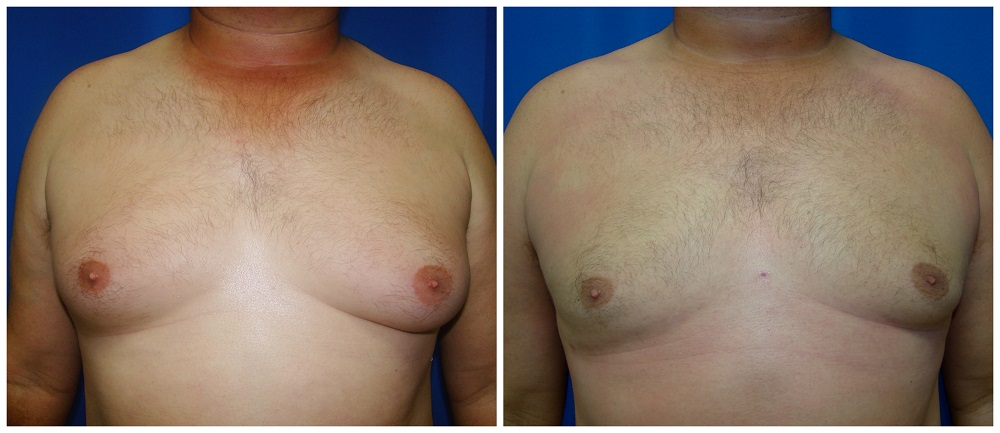 Male Liposuction Before & After Patient #284