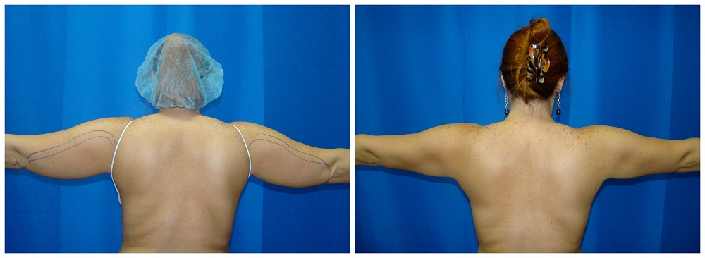Female Liposuction Before & After Patient #216