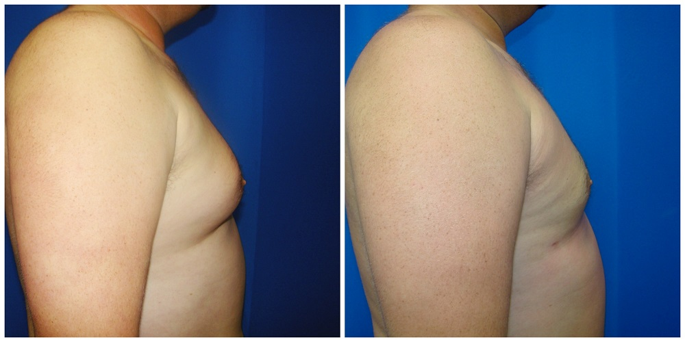 Male Liposuction Before & After Patient #286