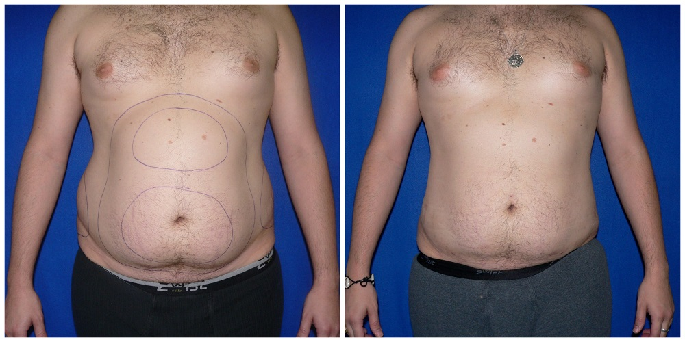 Male Liposuction Before & After Patient #276