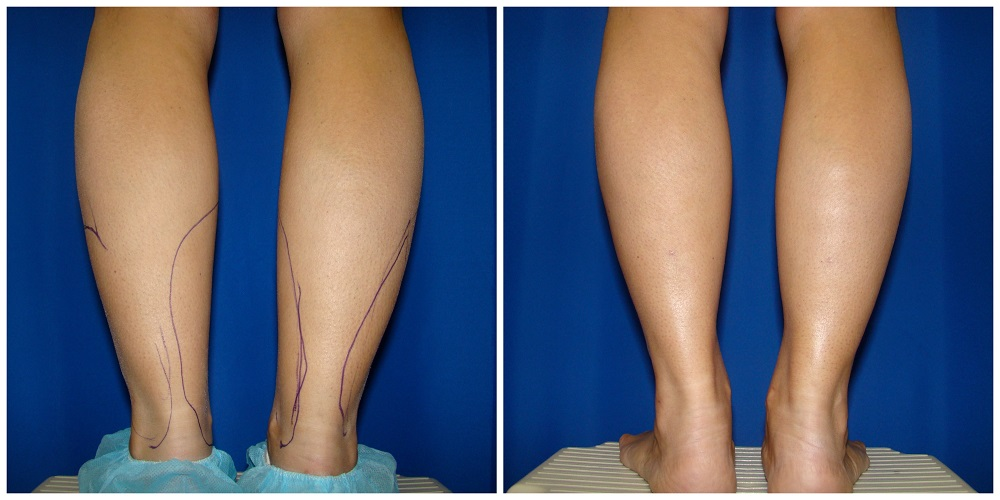 Female Liposuction Before & After Patient #218