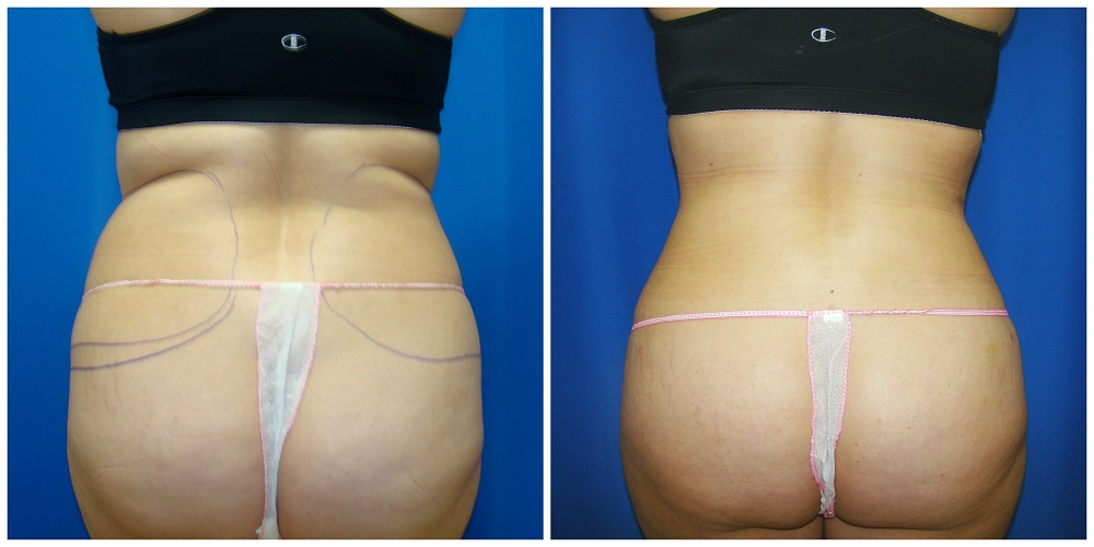 Female Liposuction Before & After Patient #222