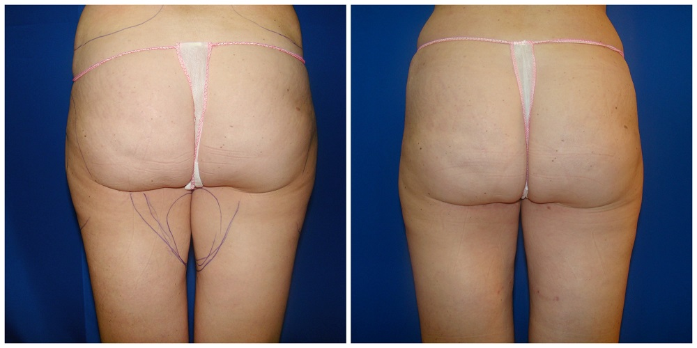 Female Liposuction Before & After Patient #224