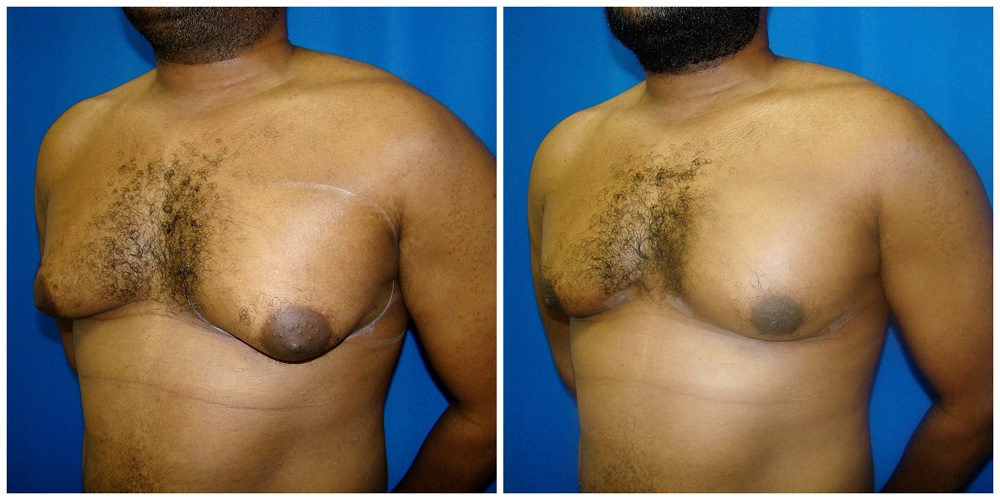 Male Liposuction Before & After Patient #288