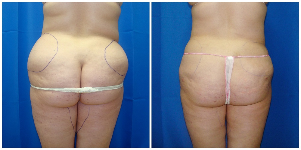 Female Liposuction Before & After Patient #230