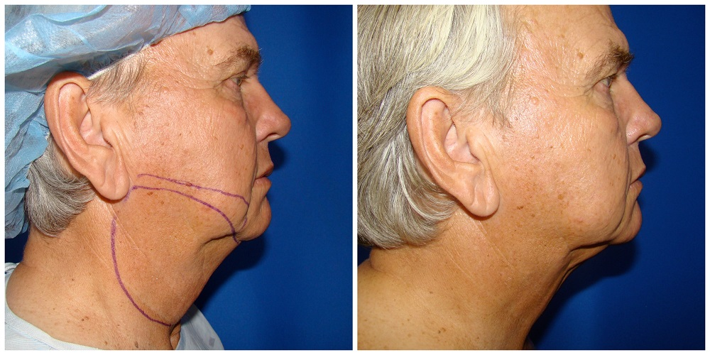 Male Liposuction Before & After Patient #290