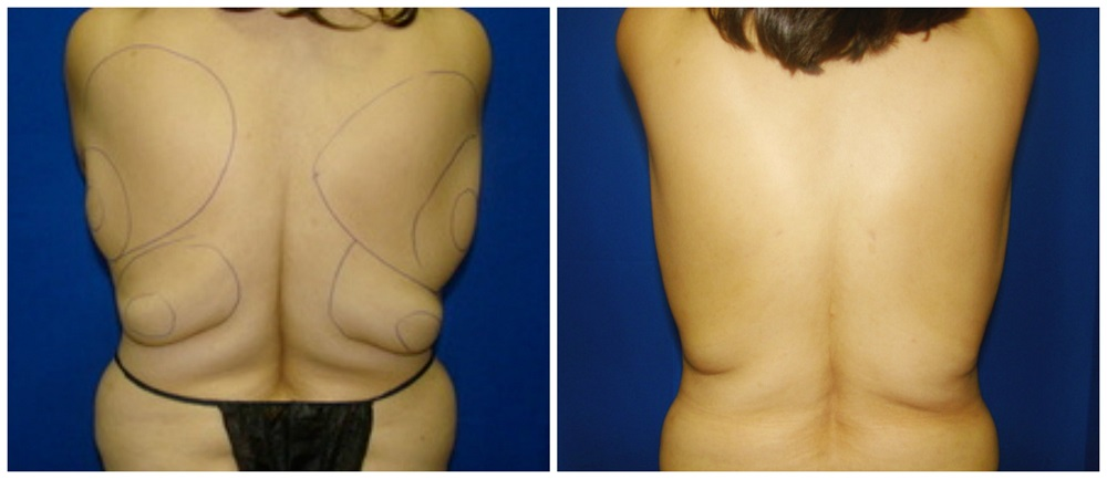 Female Liposuction Before & After Patient #232