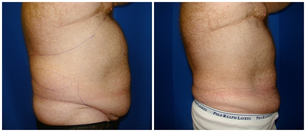Male Liposuction Before & After Patient #292