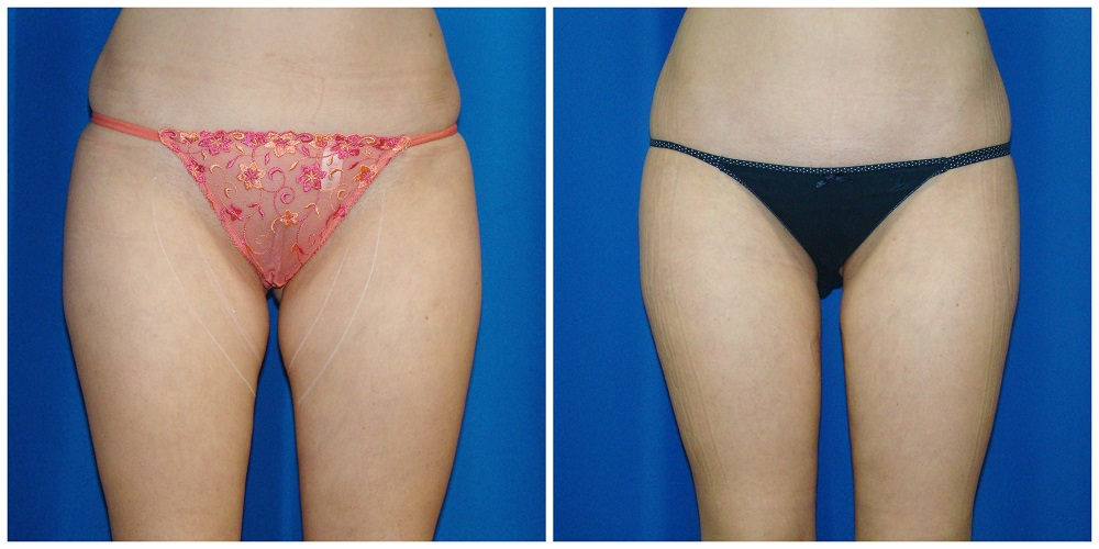 Female Liposuction Before & After Patient #238