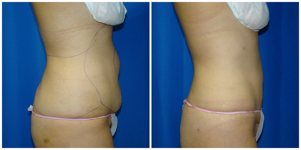 Female Liposuction Before & After Patient #241