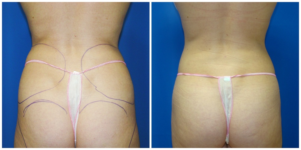 Female Liposuction Before & After Patient #246