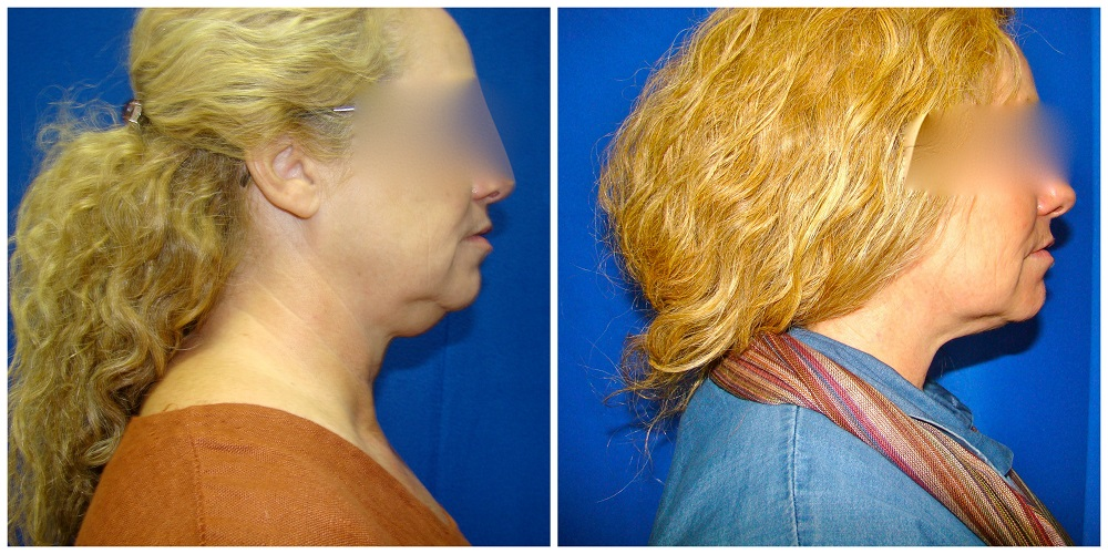 Female Liposuction Before & After Patient #196