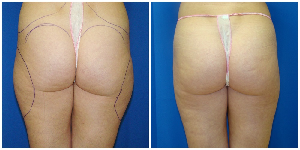 Female Liposuction Before & After Patient #249