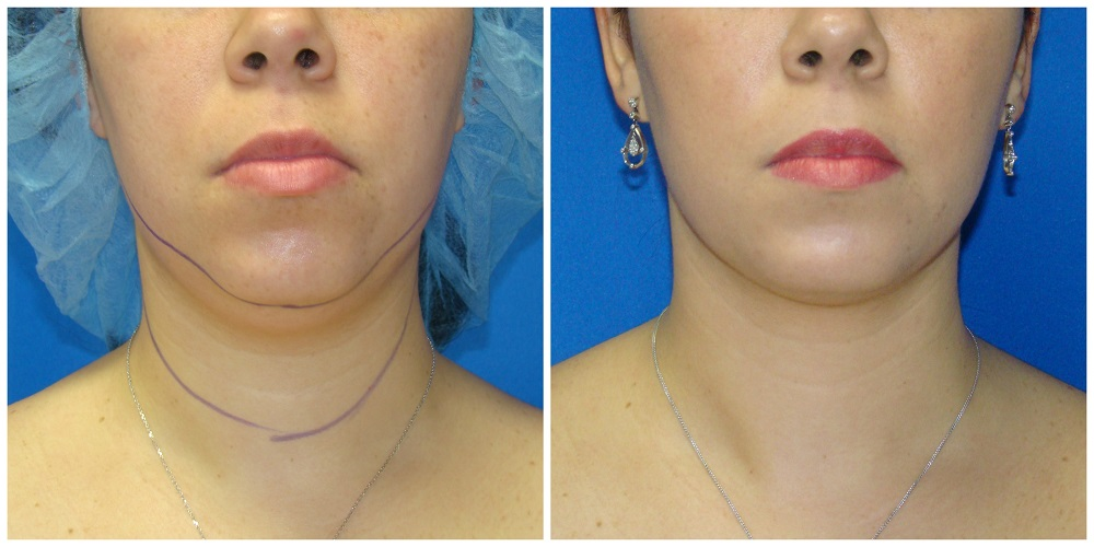 Female Liposuction Before & After Patient #251