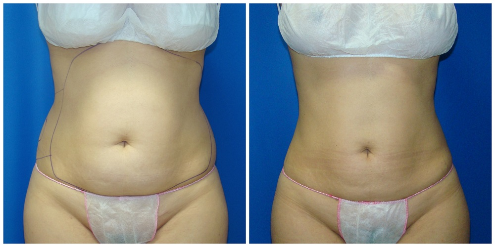 Female Liposuction Before & After Patient #253