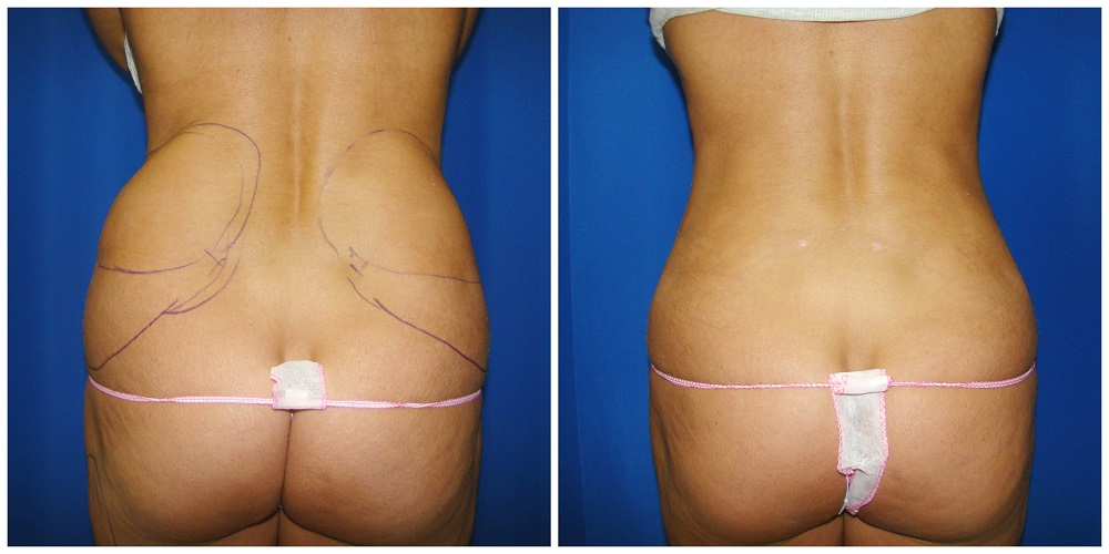 Female Liposuction Before & After Patient #256