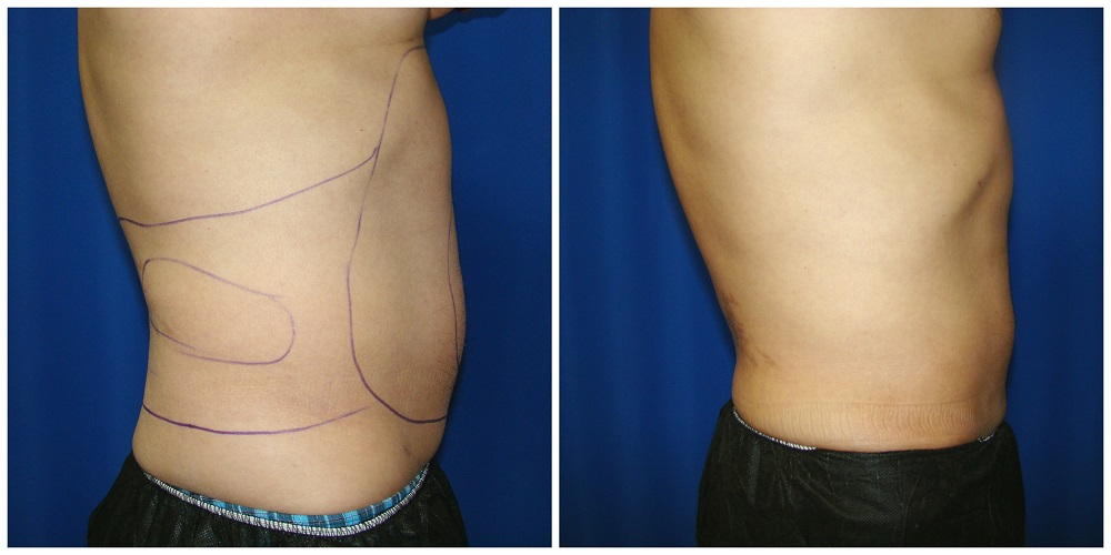 Female Liposuction Before & After Patient #261