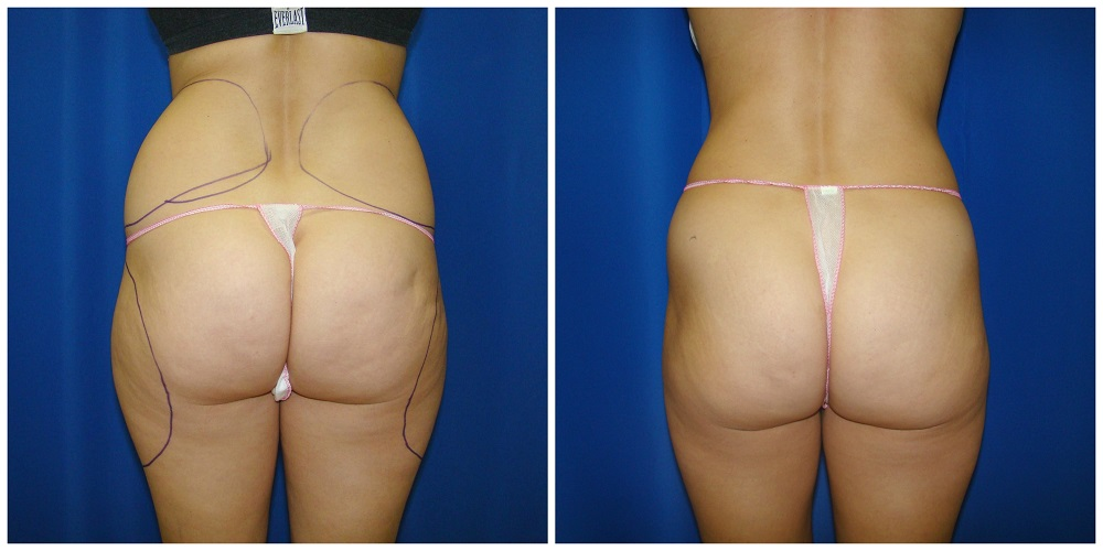 Female Liposuction Before & After Patient #263