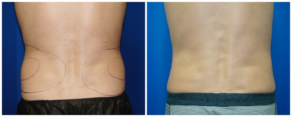 Male Liposuction Before & After Patient #278