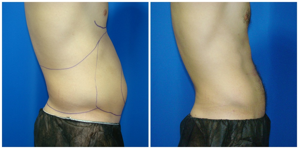 Male Liposuction Before & After Patient #294