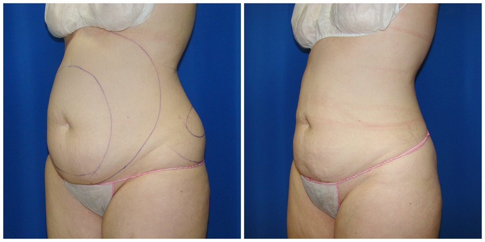 Female Liposuction Before & After Patient #266