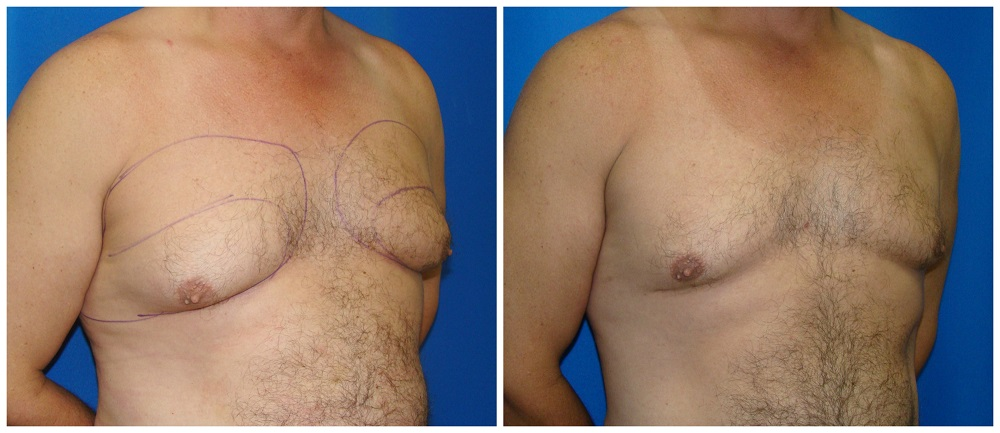 Male Liposuction Before & After Patient #297
