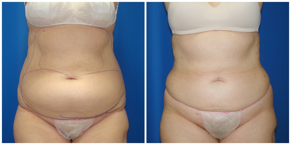 Female Liposuction Before & After Patient #272