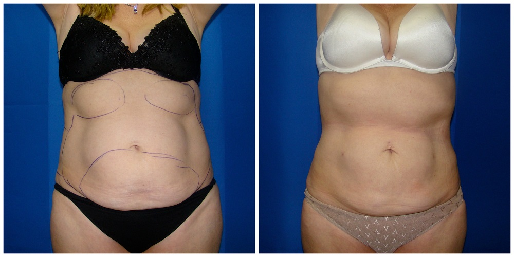 Female Liposuction Before & After Patient #198