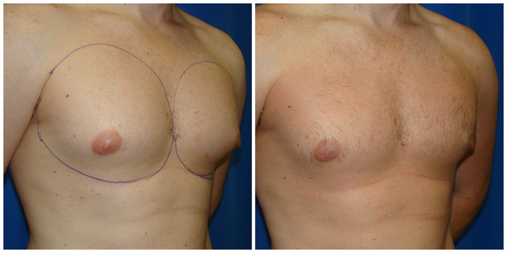Male Liposuction Before & After Patient #300