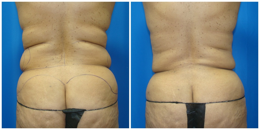 Female Liposuction Before & After Patient #274
