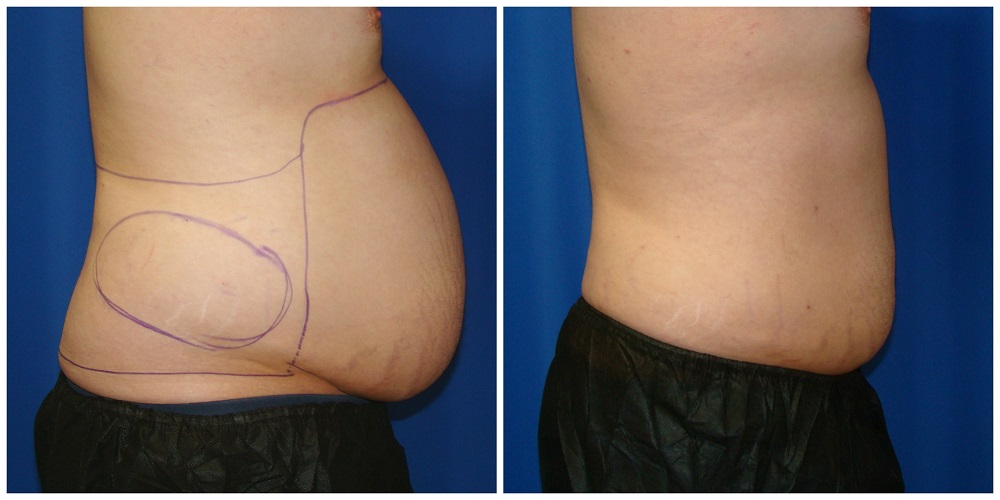 Male Liposuction Before & After Patient #302