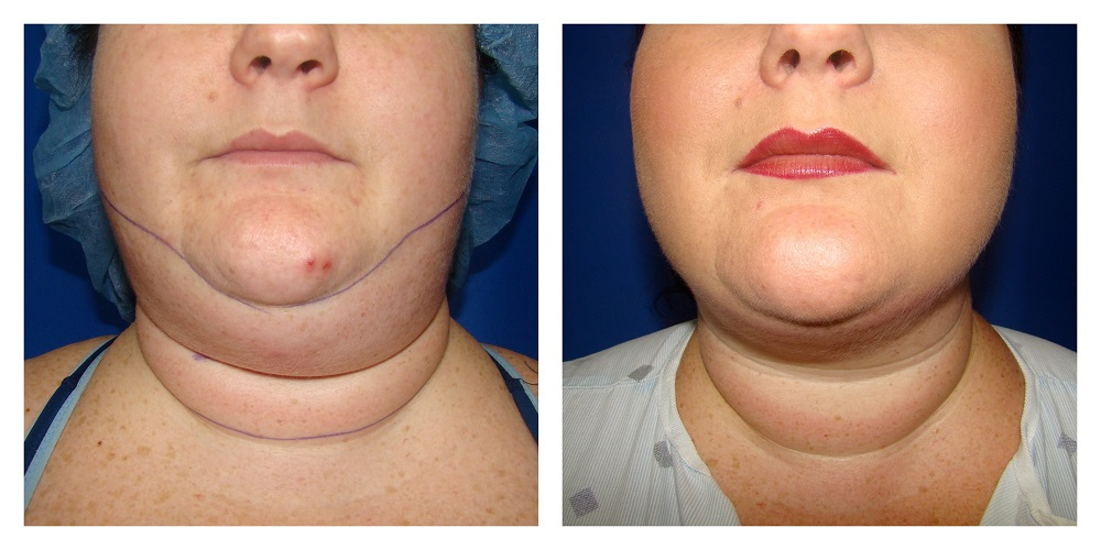 Female Liposuction Before & After Patient #200