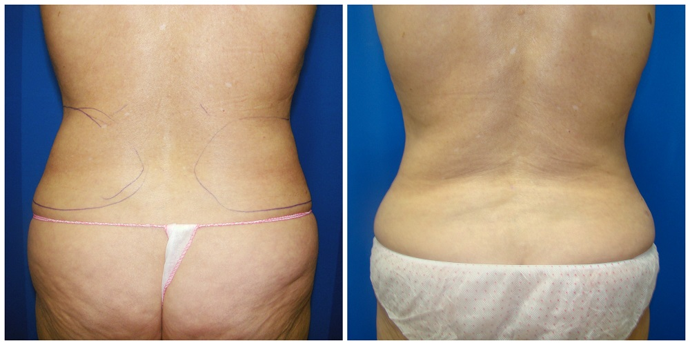 Female Liposuction Before & After Patient #204